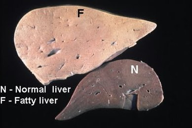 Alcoholic Fatty Liver